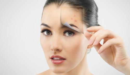 7 Shocking Acne Skincare Mistakes We Usually Do 3
